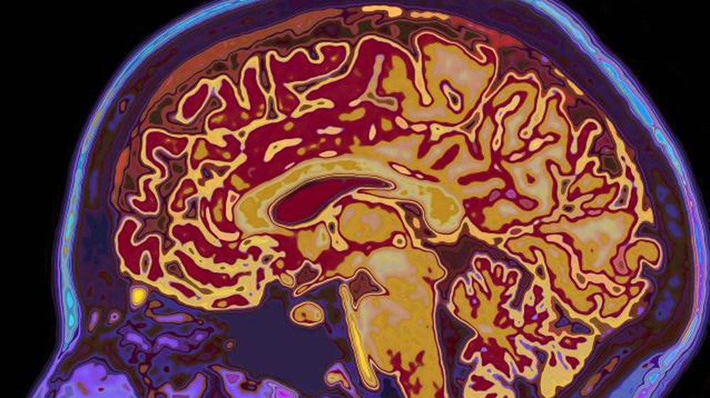 03E8000006656968-photo-neurones.jpg