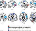 Les gens intelligents ont le cerveau mieux