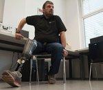 Une prothèse de jambe connectée pour lutter contre les douleurs fantômes