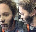 Une Australienne brûlée par l'explosion de son casque audio dans un avion