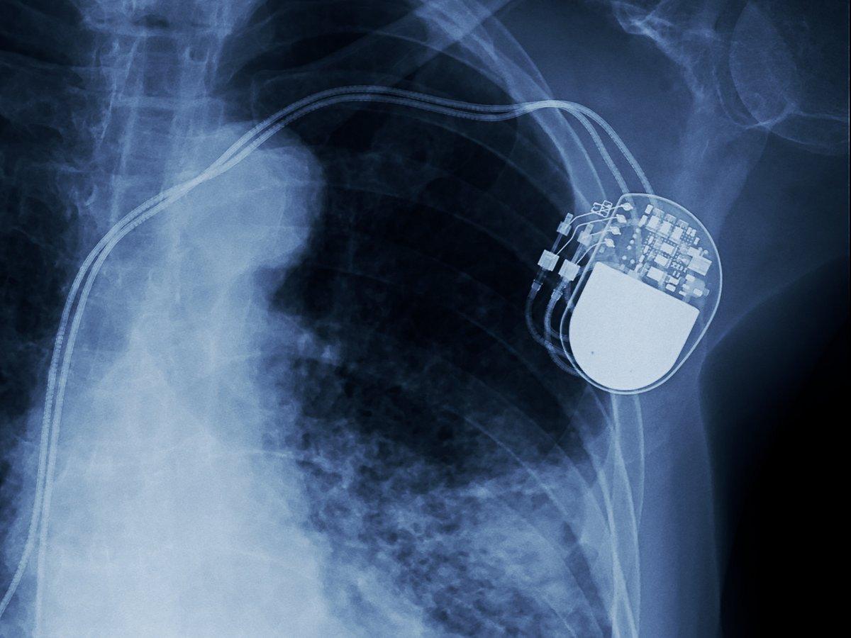 pacemaker radio fotolia