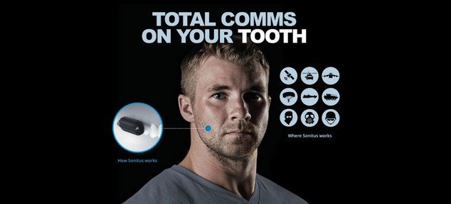 molar-mic-2