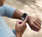 Apple Watch : AliveCor attaque Apple pour infraction de brevets et pratiques anticoncurrentielles