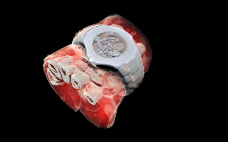 Scan 3D couleur poignet humain MARS Bioimaging Ltd CERN Medipix3