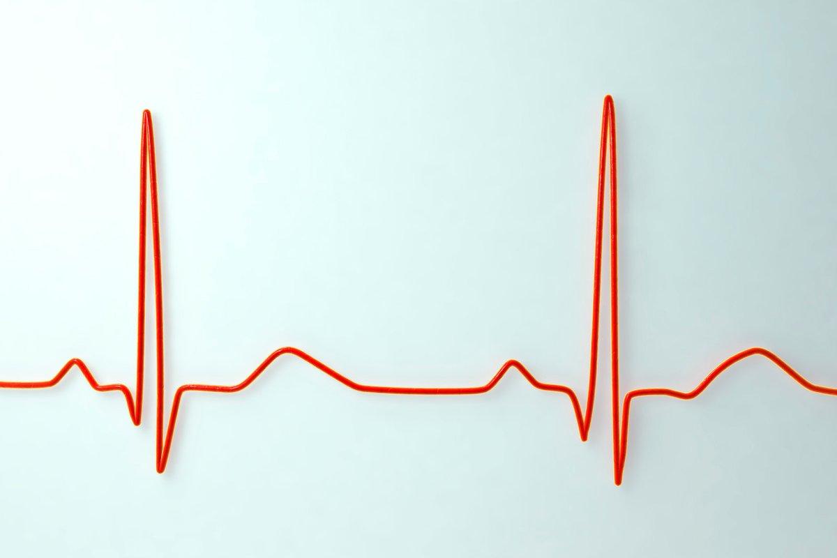 coeur battement sinusoïde monitoring