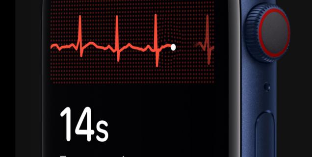 L'Apple Watch Series 7 et la Samsung Galaxy Watch 4 pourraient contrôler la glycémie