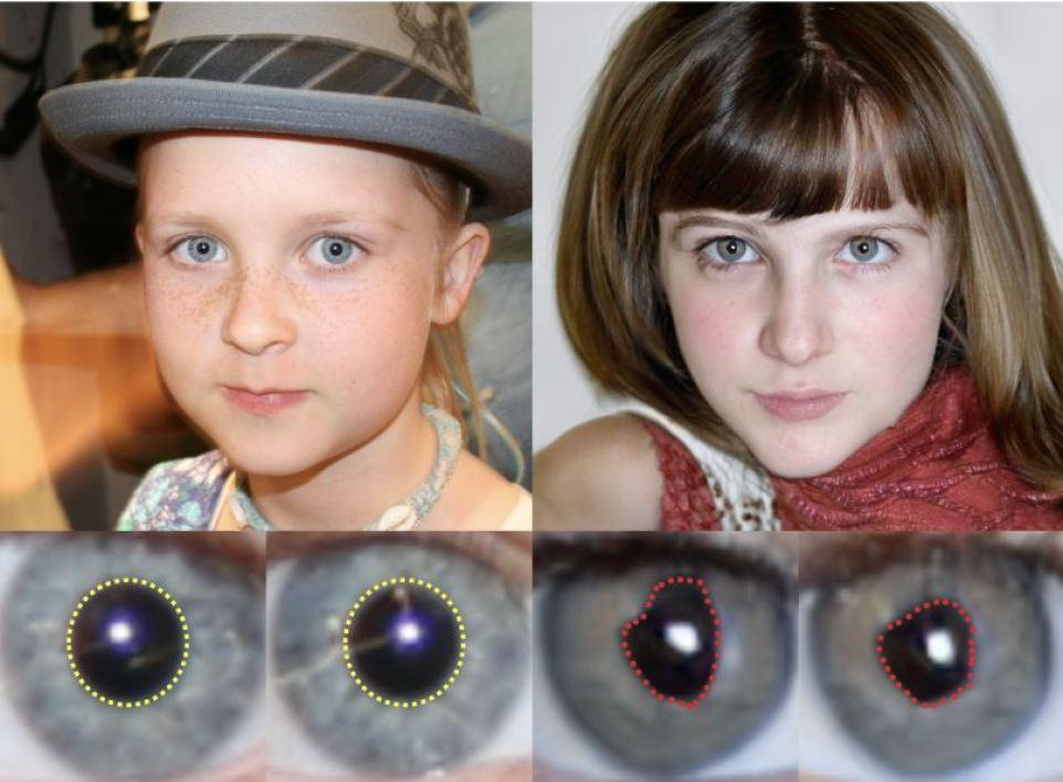 Deepfake pupille